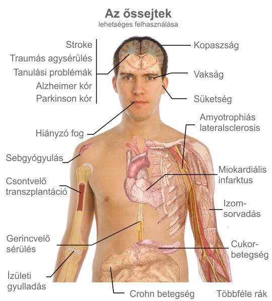 őssejt ízületi kezelések áttekintése